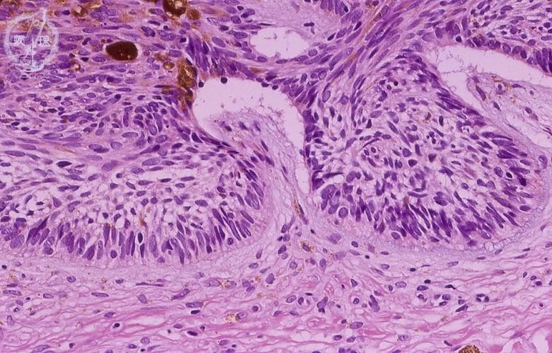 基底細胞癌 (Basal Cell Carcinoma:BCC)